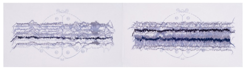 """© Gail Biederman 2007, """"Myoclonic/Tonic Clonic,"""" diptych, collagraph, collage, screenprint and stitching on paper and fabric, 11.5"""" x 24"""" image, 15"""" x 28"""" sheet.Price: $1,500"""